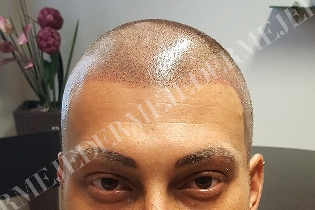 Jederme   Tricopigmentazione effetto rasato permanente ...